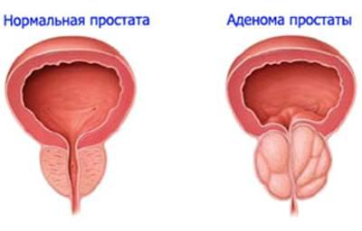 Простата операция увеличение