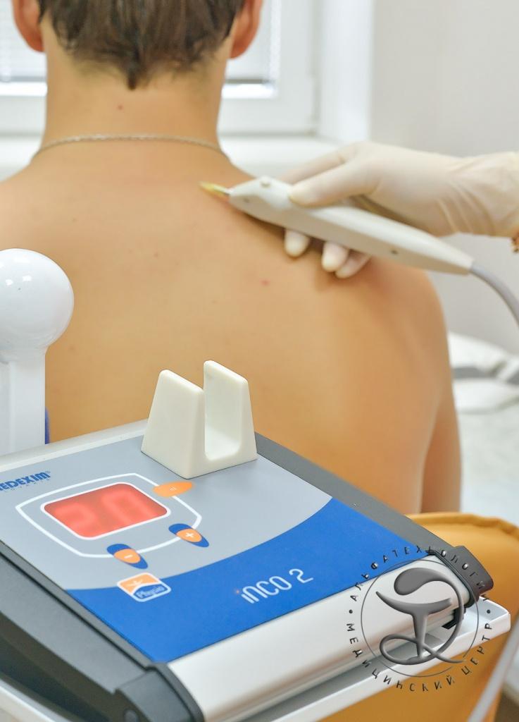 Кинезотерапия при межпозвонковых грыжах