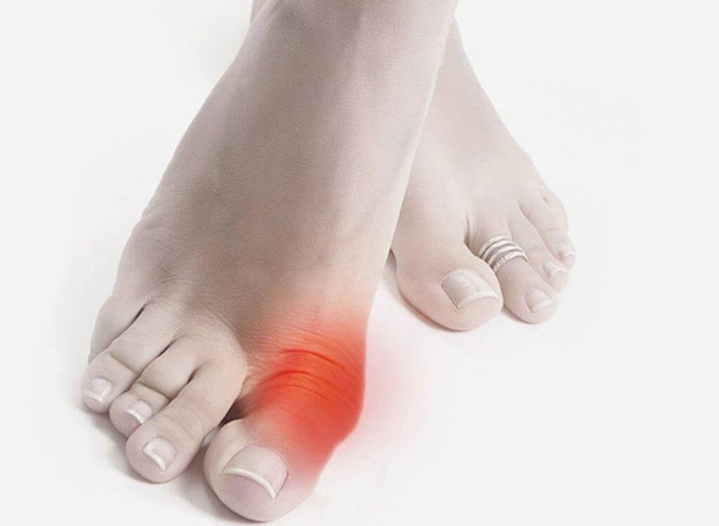 Преднизолон мазь при артрите